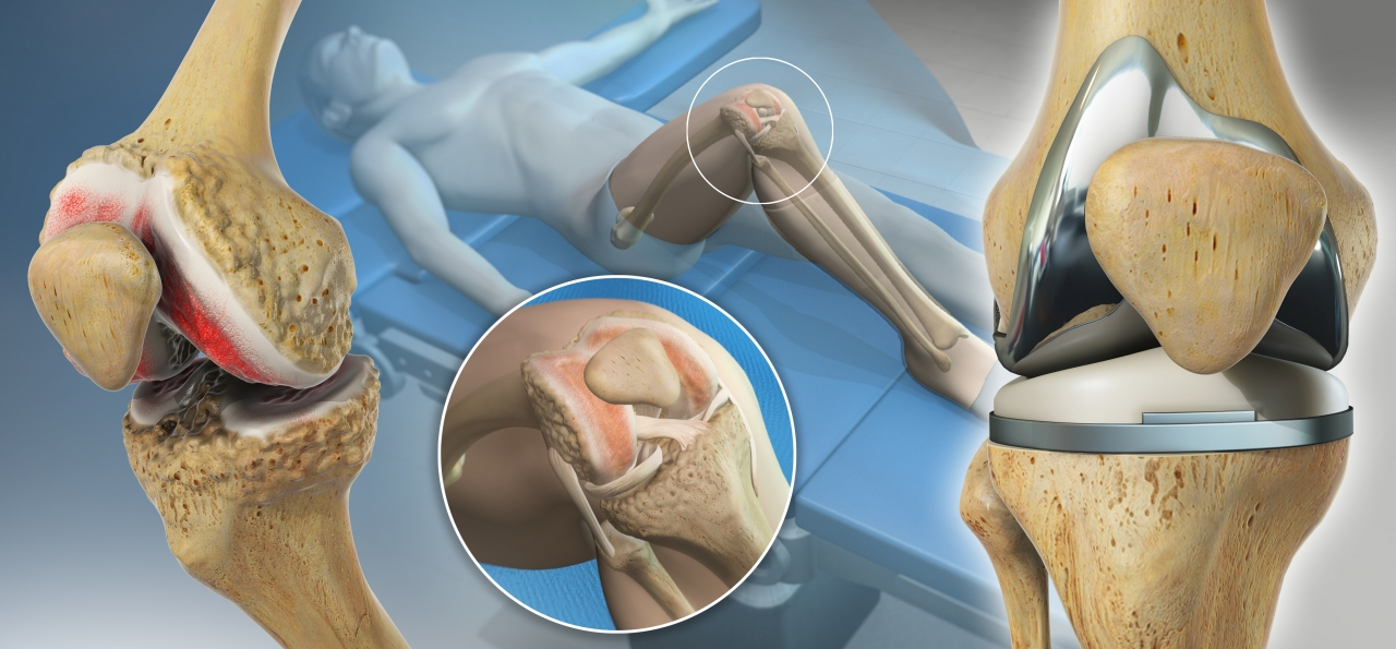 Understanding Computer-Assisted Knee Surgery