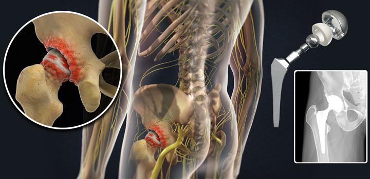 Эндопротезирование тазобедренного сустава в казани